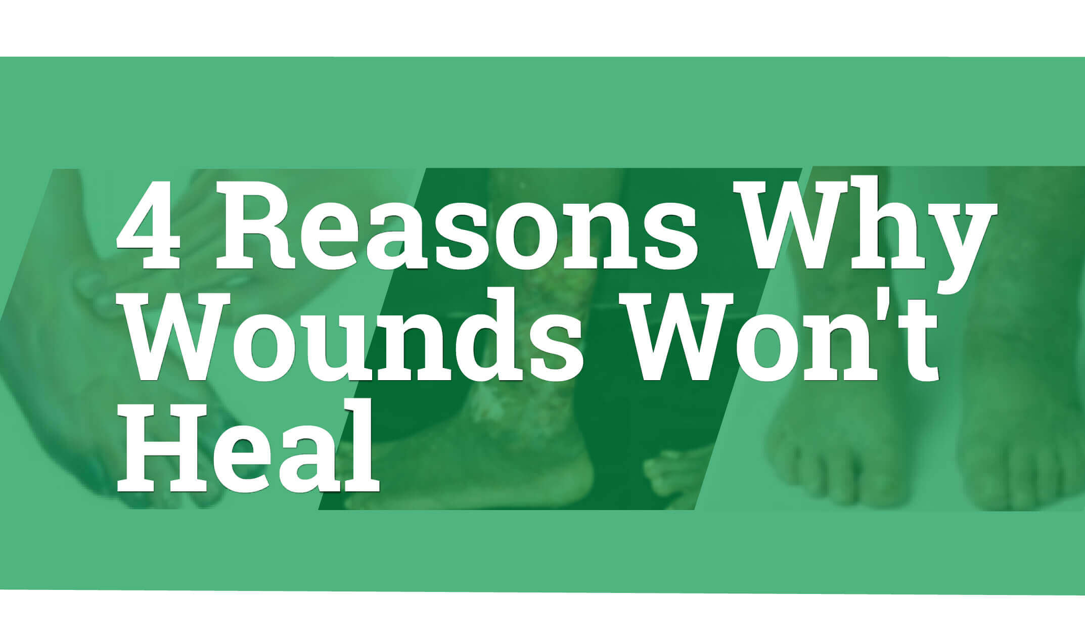 4 Reasons Why Wounds Won`t Heal